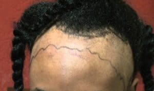 How do you treat or reverse receding hairline in women