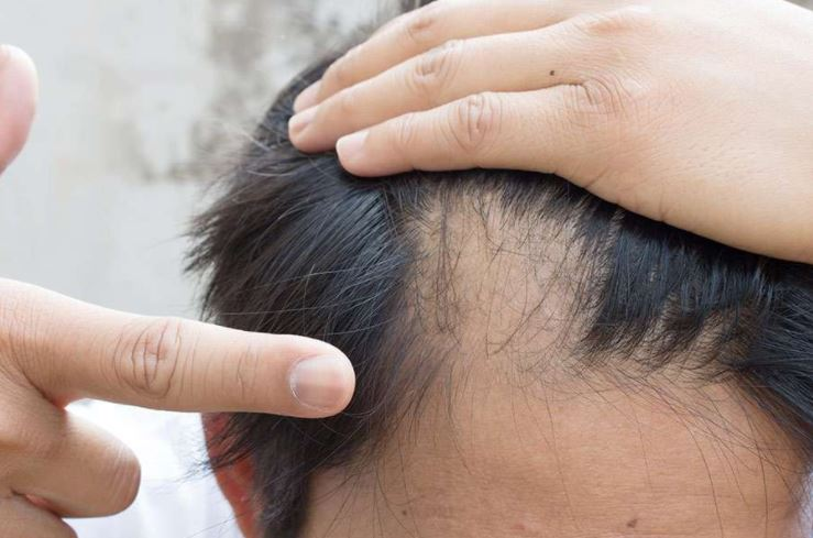 How To Stop Regrown And Prevent A Receding Hairline Strong Hair
