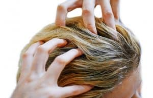 Itchy scalp no dandruff