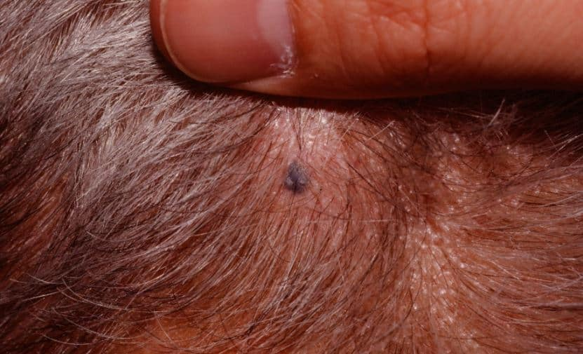 Blue Nevus skin growth
