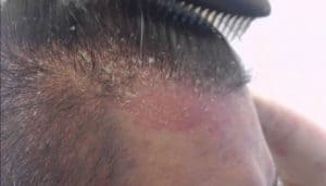 Can a dry scalp cause hair loss