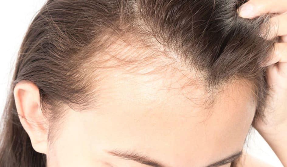 Stopping Hair Loss For Men Flyvi
