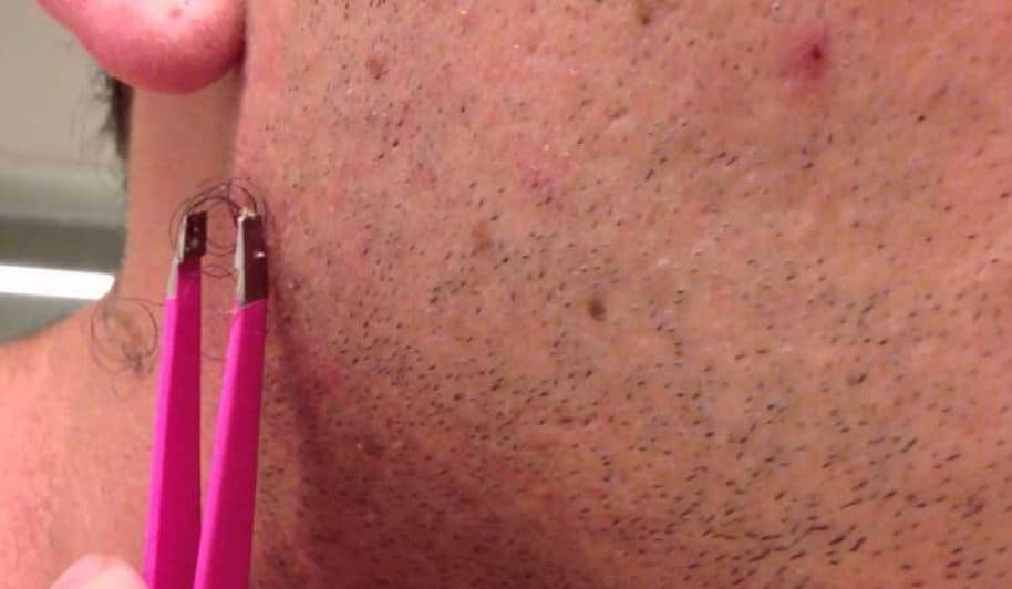Facial, ingrown hair removal