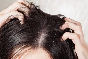 Greasy hair causes and remedies