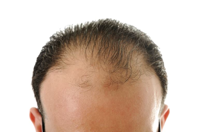 Hair loss and thinning in men