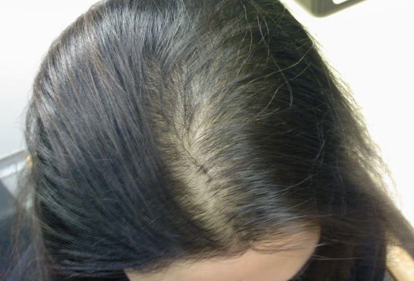 Hair loss and thinning in women