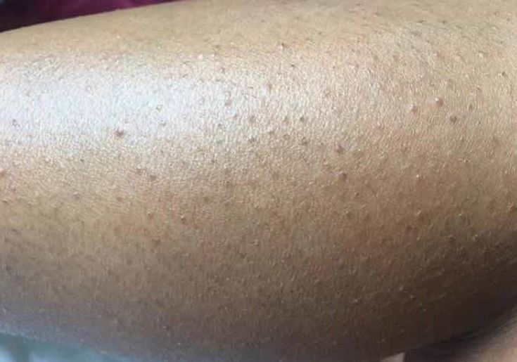 Ingrown Leg Hair Infected Removal Treatments Strong Hair