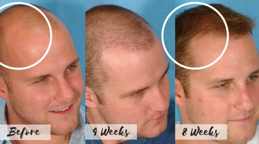 Receding hairline treatments before and after