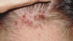 Red bumps due to scalp acne