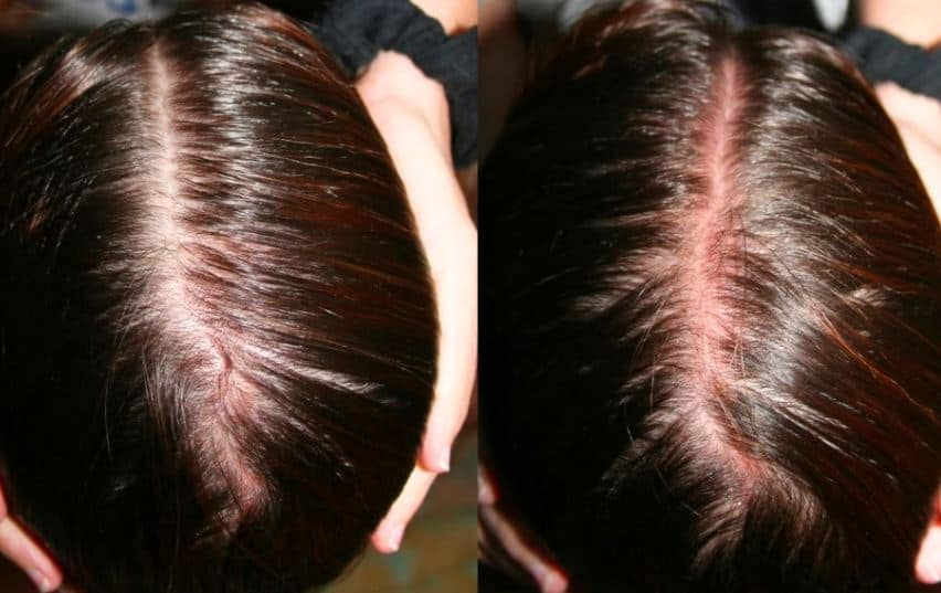 Red sunburned scalp