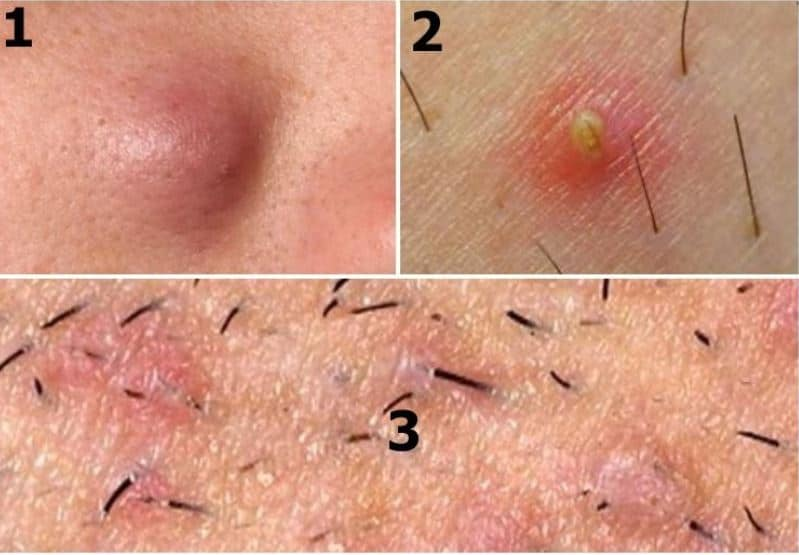 Ingrown Armpit Hair Causes Symptom And Removal Strong Hair