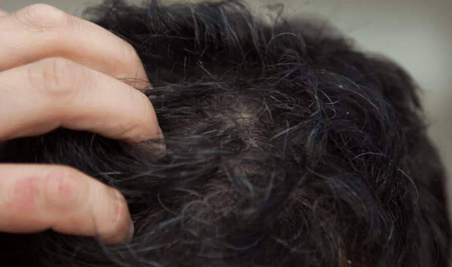 Tender, painful and sensitive scalp
