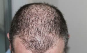 Why is my hair thinning - treatments