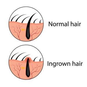 Deep ingrown hair removal